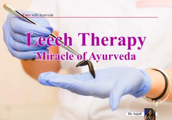 Leech Therapy - Miracle of Ayurveda